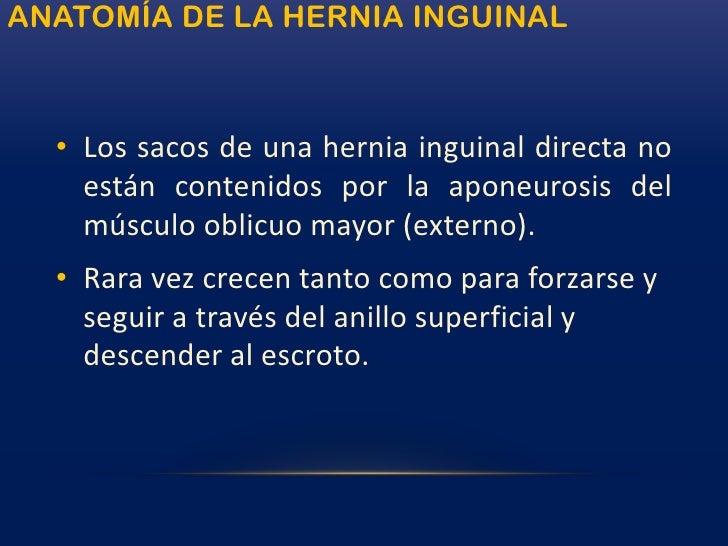 Hernias de la ingle<br />