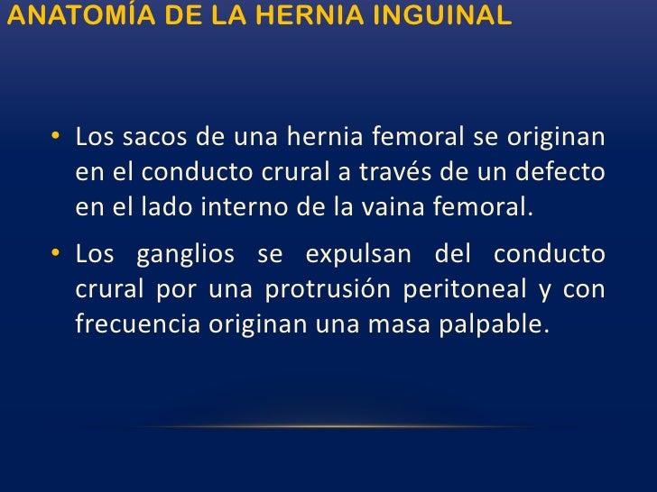 Hernia inguinal: directa e indirecta<br />
