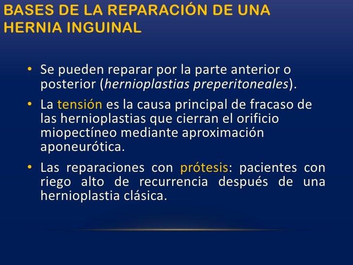 Anatomía de la hernia inguinal<br />El saco de una hernia indirecta es la dilatación de un proceso vaginal persistente.<br...