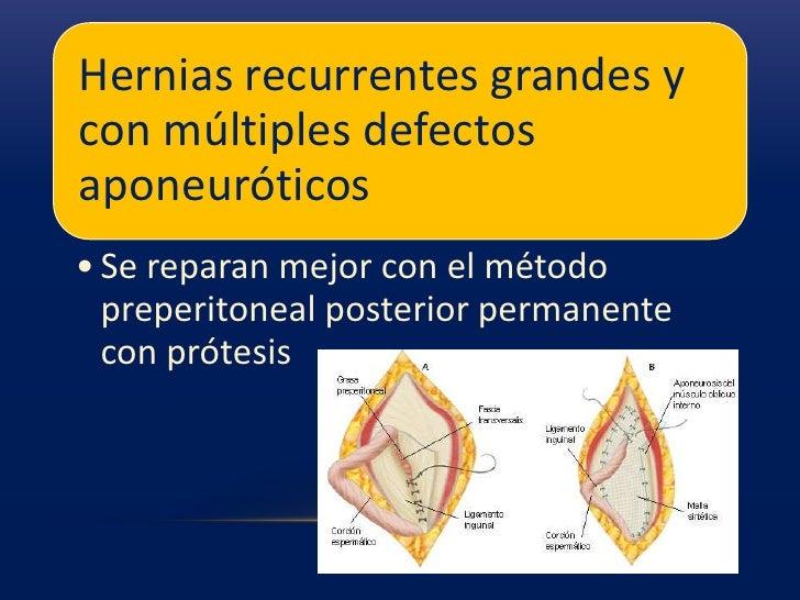 Los sacos de una hernia femoral se originan en el conducto crural a través de un defecto en el lado interno de la vaina fe...