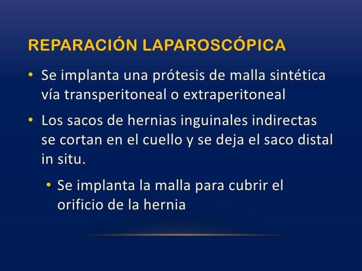 causa<br />Las hernias inguinales pueden ser congénitas o adquiridas.<br />Indirectas = Congénitas<br />Proceso vaginal<br...