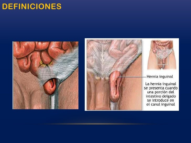 Conocer la sintomatología y la anatomía de una hernia, dependiendo de su ubicación.