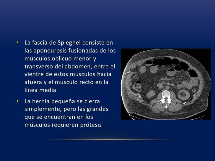Hernioplastia sin tension<br />Cuando se implanta las prótesis sin una reparación formal, mejoran los resultados de manera...
