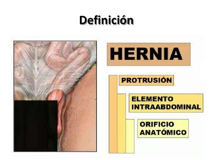 Hernias Slide 2