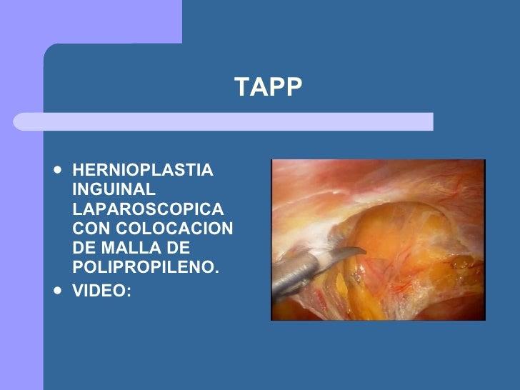 Hernia Tapp