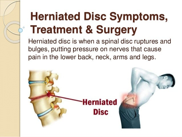 herniated disc symptoms, treatment & surgery, Human Body