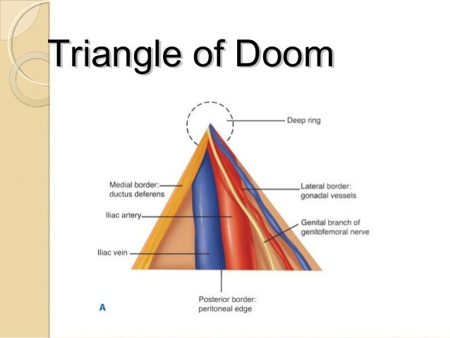 Image result for triangle of doom
