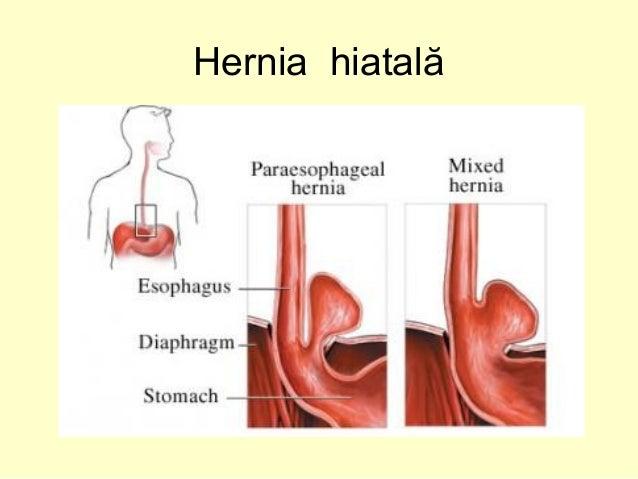 Hernia: Tipuri, Simptome si Tratament - ProEstetica