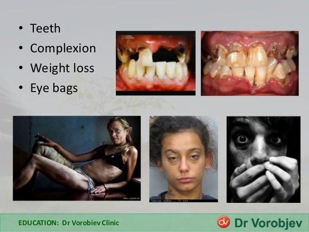 Xanax Effects On The Body Heroin addiction effec...