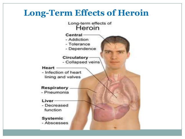 an argument against heroin abuse and the effects of heroin