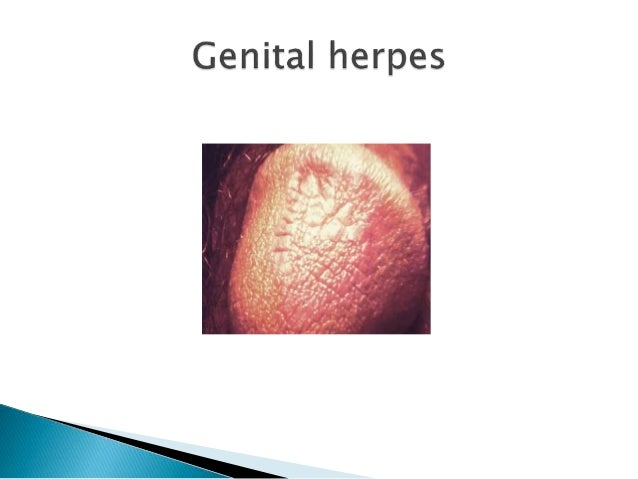 Hsv 2 and unprotected sex