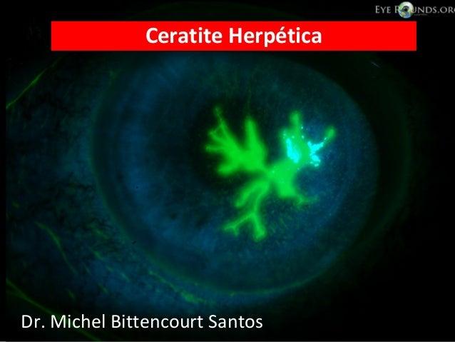 •Dr. Michel Bittencourt Santos Ceratite Herpética Dr. Michel Bittencourt Santos