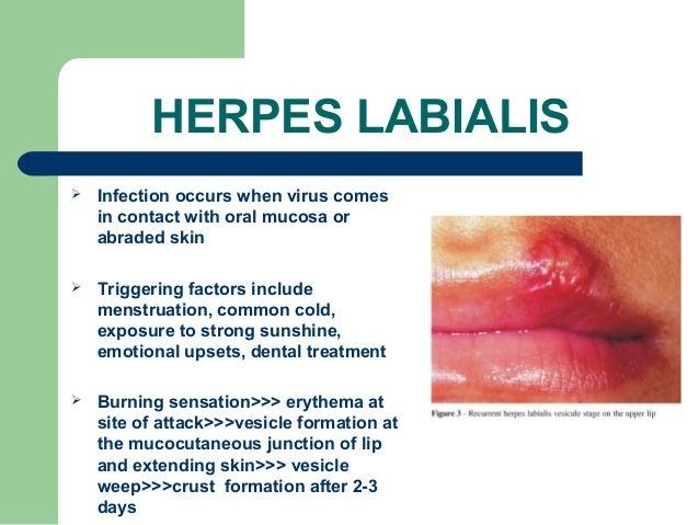 oral herpes simplex treatment