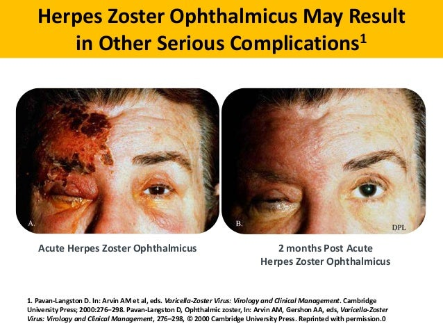 Abc Of Prevention Of Herpes Zoster In Adult Women Dr