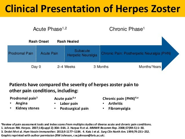 Abc Of Herpes Zoster Disease Burden Epidemiology Clinical