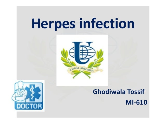 Herpes infection  Ghodiwala Tossif Ml-610