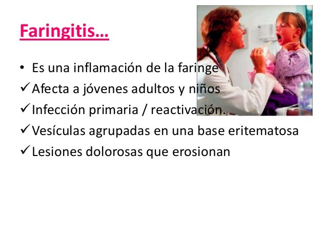 Gingivoestomatitis Herpética Infecciones virales más comunes causada por HSV-1  Autolimitante, Infección primaria en niños...