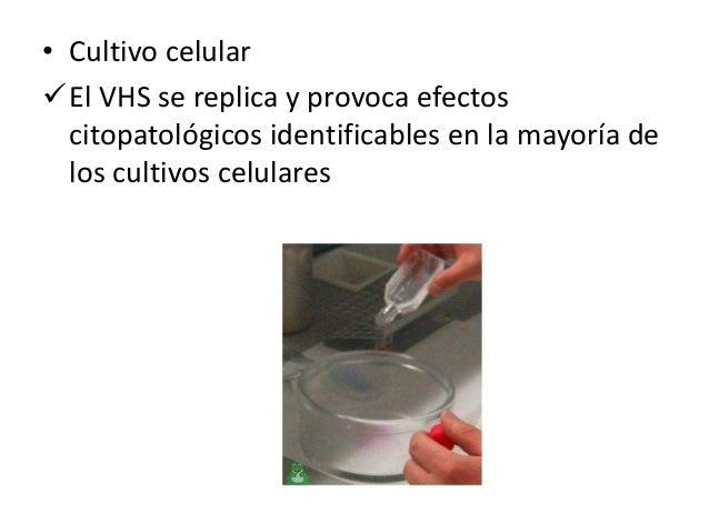 • Se utilizan sondas ADN especificas del tipo de VHS, cebadores específicos de ADN para PCR y anticuerpos con el fin de di...