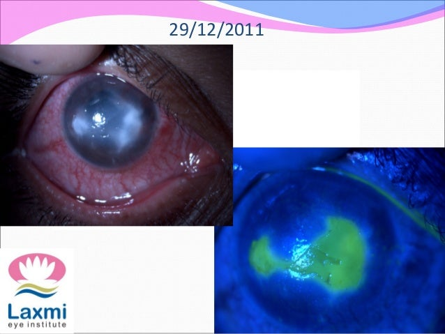 herpes simplex keratitis amp herpes zoster opthalmicus