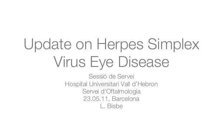Update on Herpes Simplex   Virus Eye Disease              Sessió de Servei     Hospital Universitari Vall d'Hebron        ...