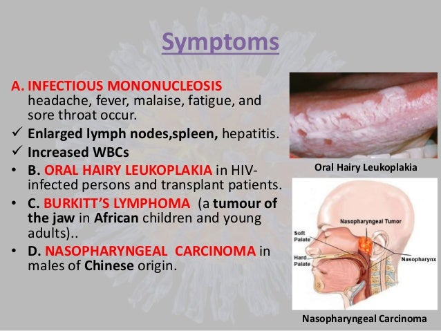 Symptoms of viral infection in adults