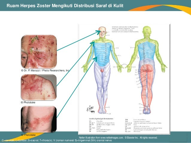 Herpes Zoster Dan Nyeri Pasca Herpes By Dr Prasna