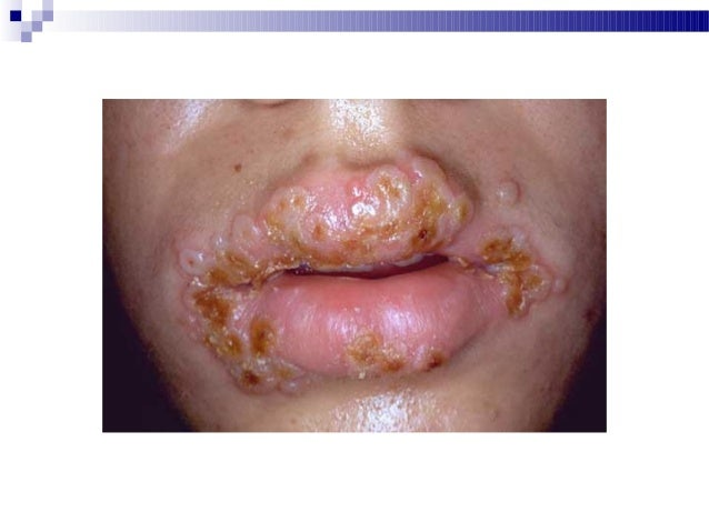 herpetic skin infections