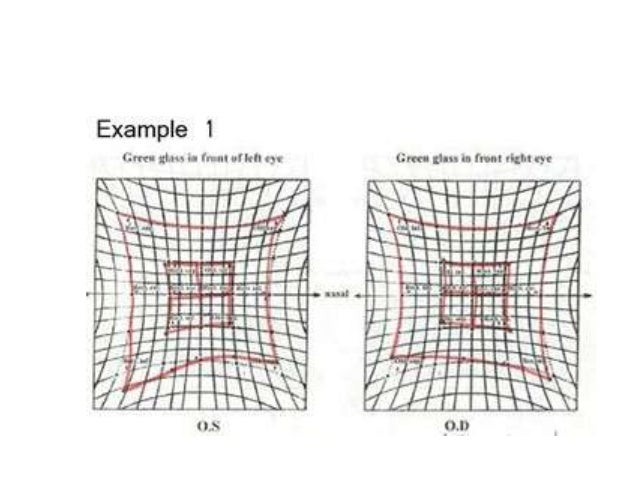 Hess charting