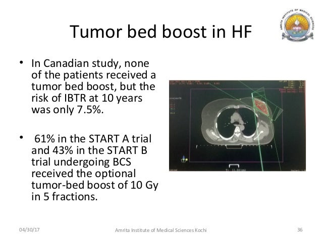 Canadian breast cancer radiation study