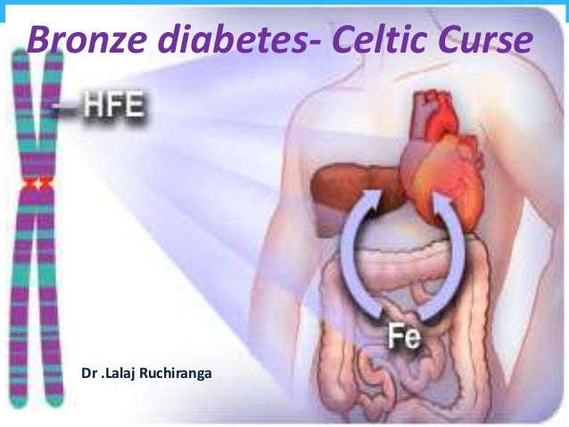 Bronze diabetes- Celtic Curse Dr .Lalaj Ruchiranga