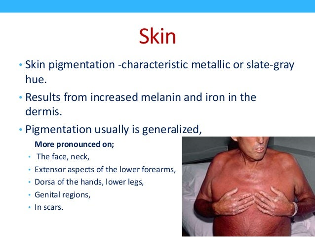 hereditary hemochromatosis Inherited (genetic) disorders are caused by defective genes in the cells  1996  the hfe gene was identified as the major gene implicated in haemochromatosis.