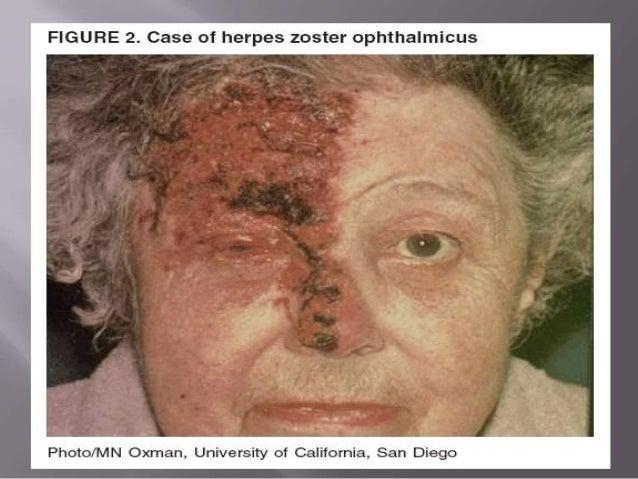 Human Herpes Viruses