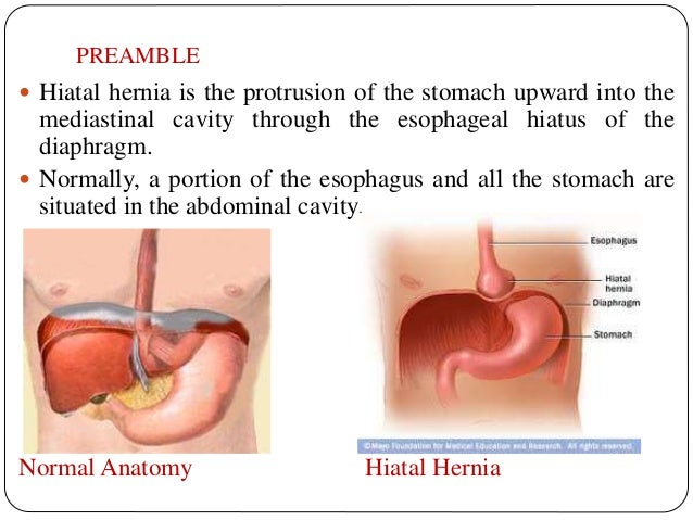 hiatal hernia, Human Body