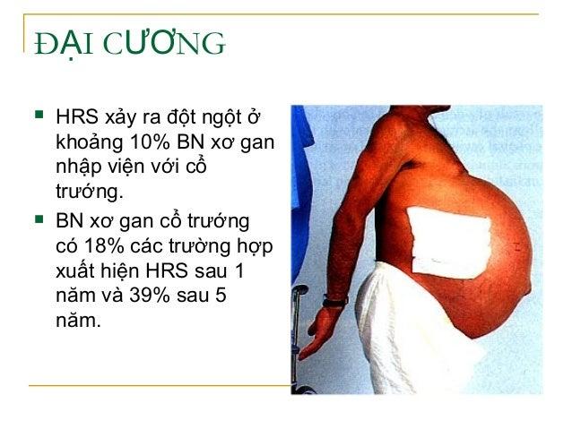 Đ I C NGẠ ƯƠ  HRS xảy ra đột ngột ở khoảng 10% BN xơ gan nhập viện với cổ trướng.  BN xơ gan cổ trướng có 18% các trường...