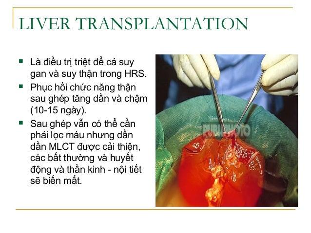 LIVER TRANSPLANTATION  Là điều trị triệt để cả suy gan và suy thận trong HRS.  Phục hồi chức năng thận sau ghép tăng dần...