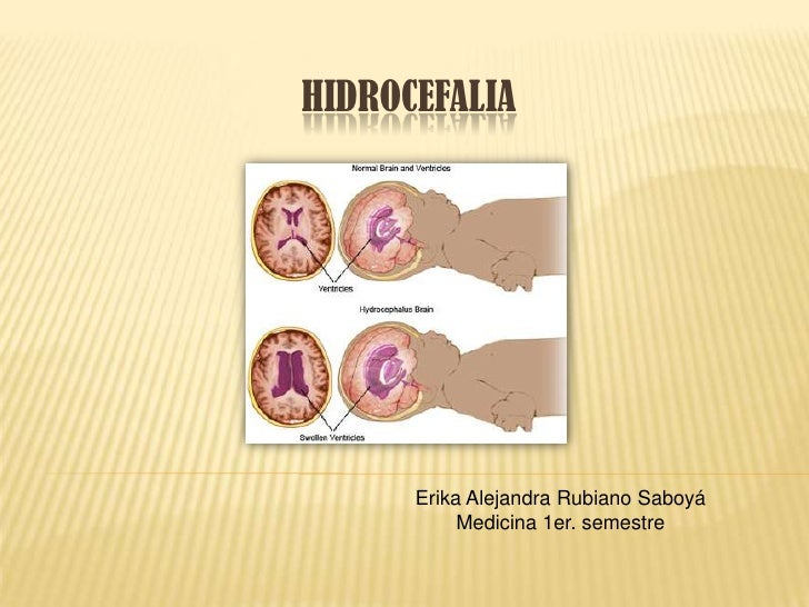 HIDROCEFALIA           Erika Alejandra Rubiano Saboyá            Medicina 1er. semestre