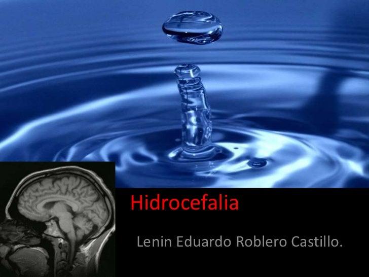 Hidrocefalia<br />Lenin Eduardo Roblero Castillo.<br />