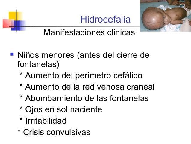 Atrofia cortico subcortical