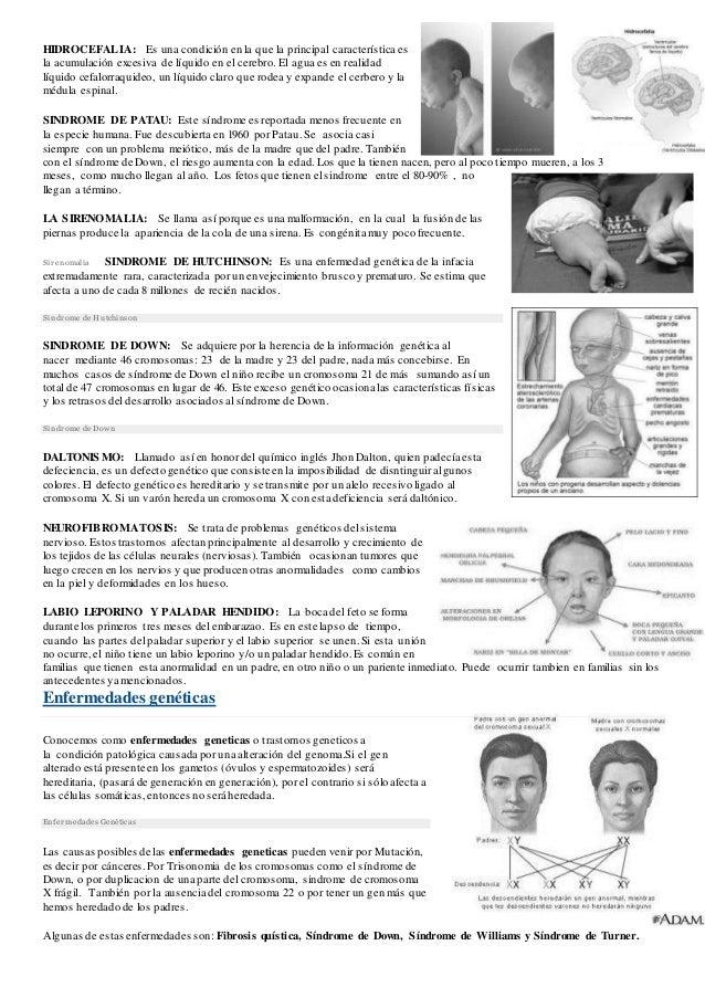Hidrocefalia Slide 2