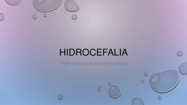 HIDROCEFALIA POR: MANUELA HIGUITA GARCIA