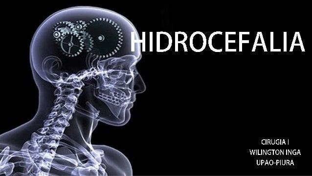 DEFINICIÓN • La hidrocefalia es un trastorno en el cual el sistema ventricular cerebral contiene una cantidad excesiva de ...