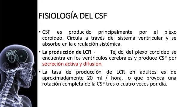 Hidrocefalia full Slide 3
