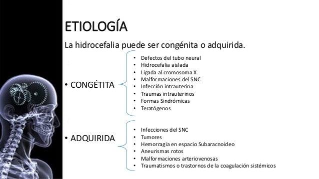 Hidrocefalia full Slide 6