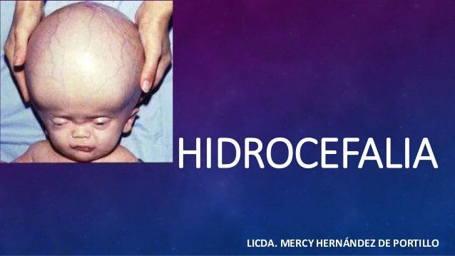 HIDROCEFALIA  LICDA. MERCY HERNÁNDEZ DE PORTILLO