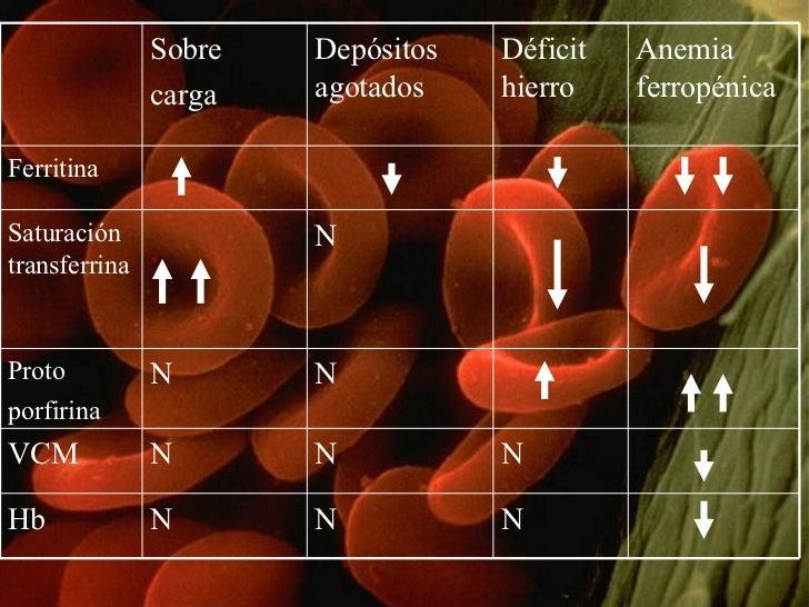 Sobre carga Depósitos agotados Déficit hierro Anemia ferropénica Ferritina Saturación transferrina N Proto porfirina N N V...