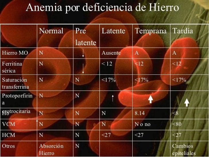 Anemia por deficiencia de Hierro Normal Pre latente Latente Temprana Tardía Hierro MO N Ausente A A Ferritina sérica N < 1...