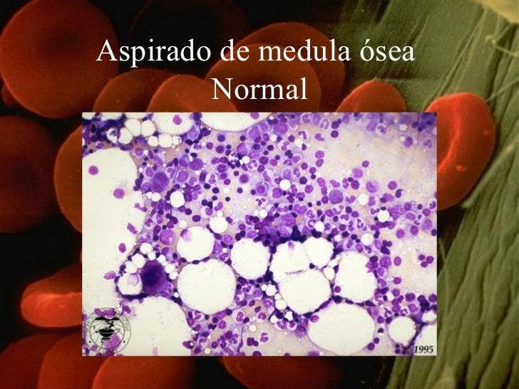 Aspirado de medula ósea  Normal
