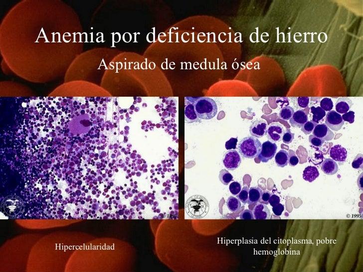 Anemia por deficiencia de hierro Aspirado de medula ósea   Hipercelularidad Hiperplasia del citoplasma, pobre hemoglobina