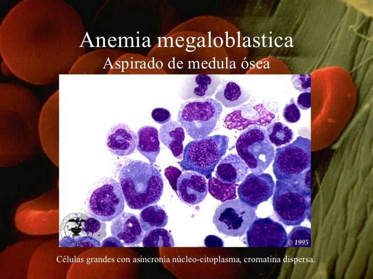 Anemia megaloblastica Aspirado de medula ósea Células grandes con asincronía núcleo-citoplasma, cromatina dispersa.