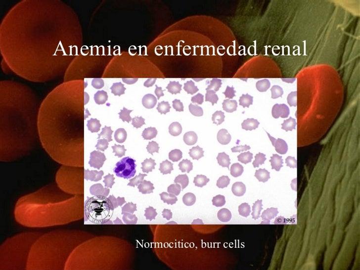 Anemia en enfermedad renal Normocitico, burr cells